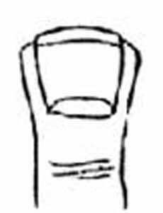 Лопатообразные пальцы